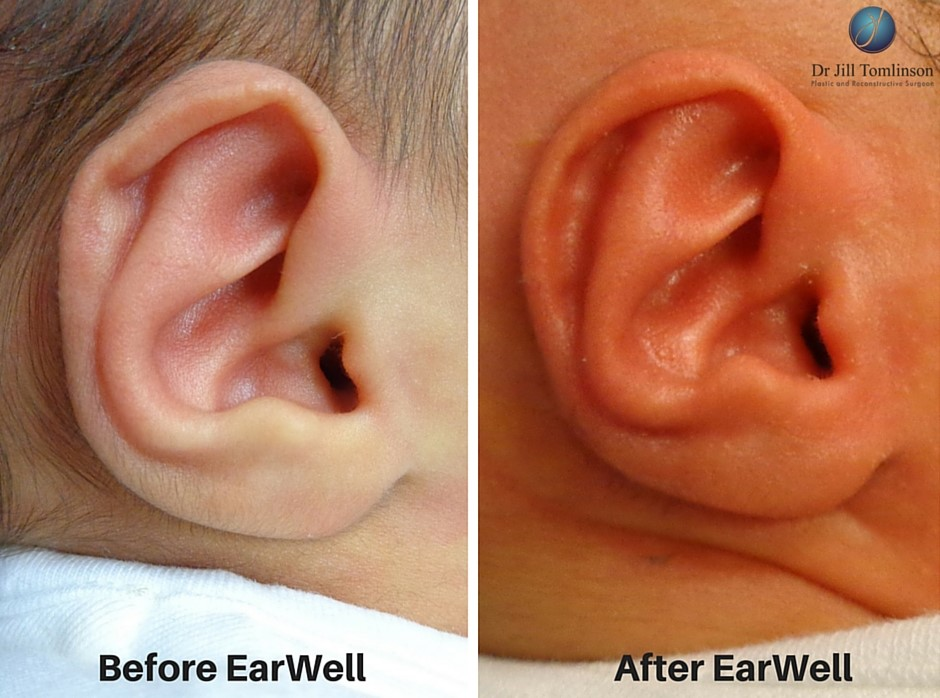 earb